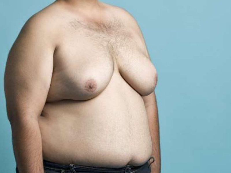 Cơ thể thiếu hormone này, ngực của nam giới có thể phát triển to như của nữ giới