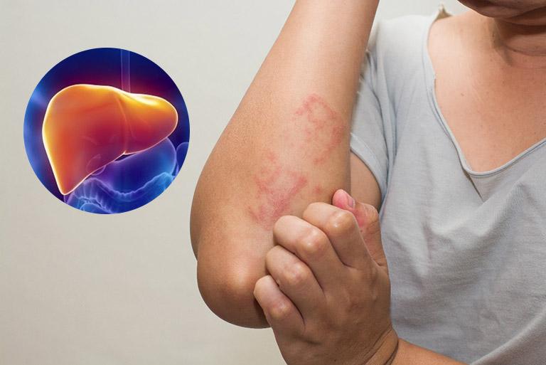 Bệnh viêm gan ảnh hưởng đến sinh lý như thế nào