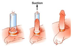 Máy massage tăng kích thước dương vật tại nhà Penis